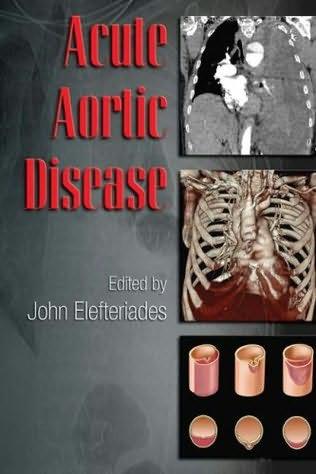 book cover of Acute Aortic Disease